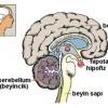 Prolaktin Yükselmesi (Hiperprolaktinemi)