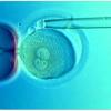 İmplantasyon Öncesi Genetik Tanı