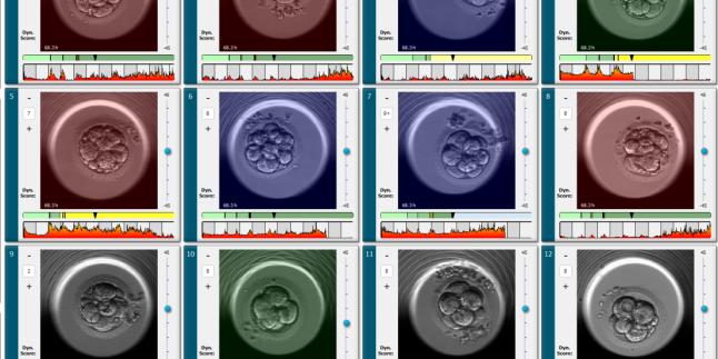 Embriyoskop nedir ? Tüp Bebek tedavilerinde Embriyoskopun faydası. Op.Dr.Özge İdem Karadağ