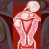 Myom olan bir hastaya tüp bebek yapılabilir mi? Doç.Dr.Turgut Aydın