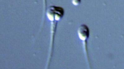 Yüksek Mikroskobik Büyütmeyle IMSI ile Seçilmiş Sperm Mikroenjeksiyonu