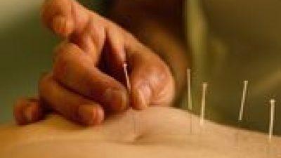 Akupunktur uygulaması sonrası hastaların %86'sında stres azalmakta ve gevşeme hissi olmaktadır.
