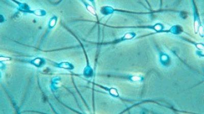 IMSI Sperm Injeksiyonu nedir? Spermlerin 6000 defa büyültülmesi