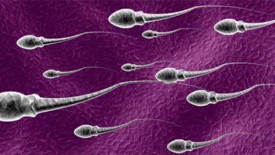 Sperm Analizi, Morfoloji ve Kruger testi