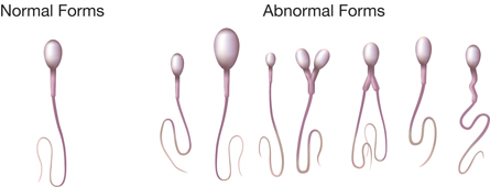Normal ve anormal sperm tipleri