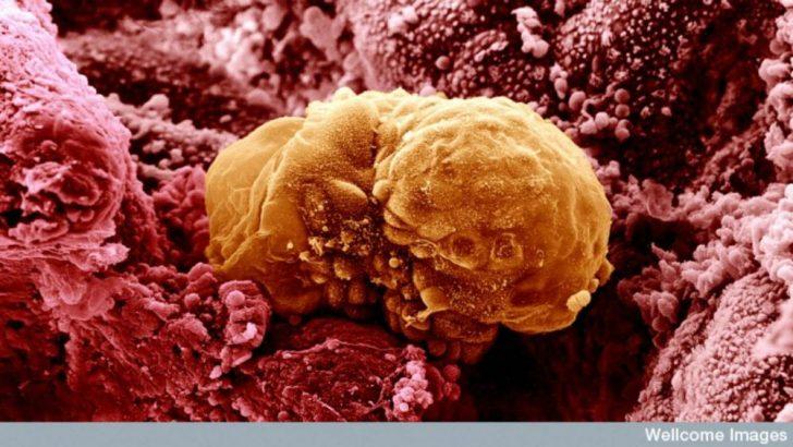 Embriyonun Rahime Yerleşmesi