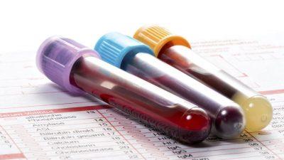 Tüp bebek tedavisinin tahlil ve testleri neler ?