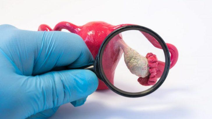 Endometriozis, Endometrioma , Çikolata kisti ; Ameliyat mı yoksa tüp bebek mi daha doğru? Prof.Dr.Şahin Zeteroğlu