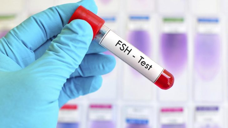 FSH Yüksek iken Tüp Bebekle Hamile Kalınır mı?