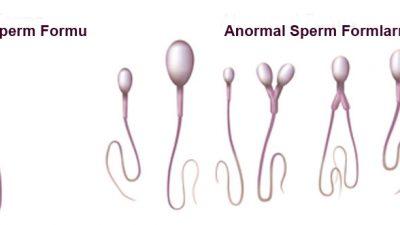 Sperm morfolojisinin sıfır olması ne demek.? Doç.Dr.Turgut Aydın