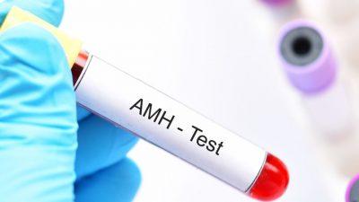 AMH testi Anti Müllerian Hormonu
