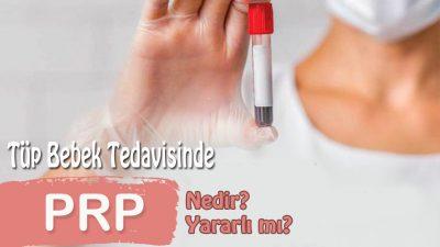 Tüp bebekte PRP tedavisi nedir ? Yararlı mı ?