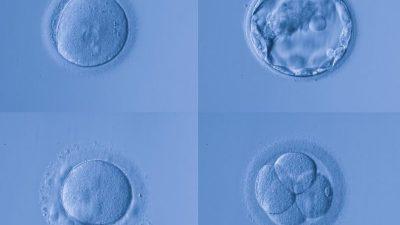 Embriyo kalitesi nasıl anlaşılıyor ?